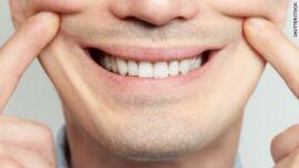 Bio Dent Vital fogkrém 75 ml